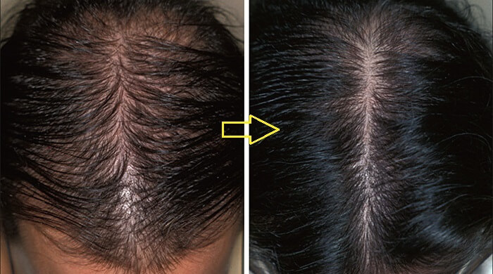 moc toc kaminomoto general hair growth danh cho toc rung lau nam anh 18