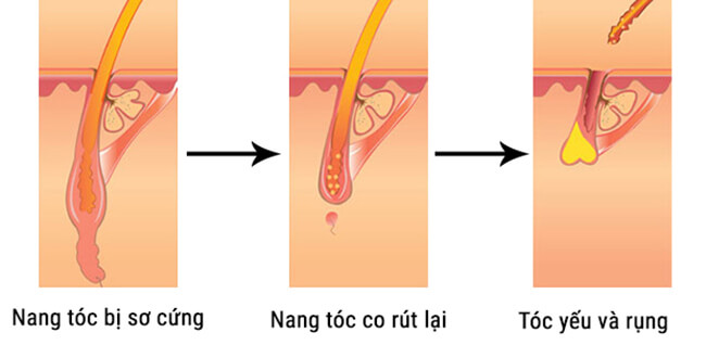 thuoc moc toc kaminomoto hair growth accelerator g nhat ban anh 4