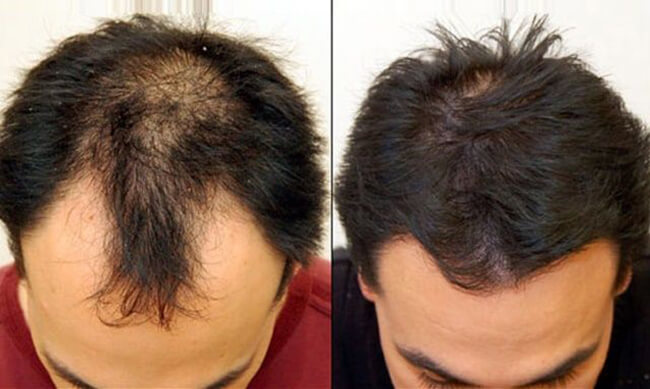 thuoc moc toc kaminomoto hair growth accelerator g nhat ban anh 6
