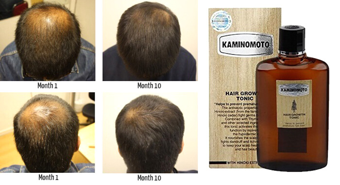 thuoc moc toc kaminomoto hair growth tonic s nhat ban anh 2