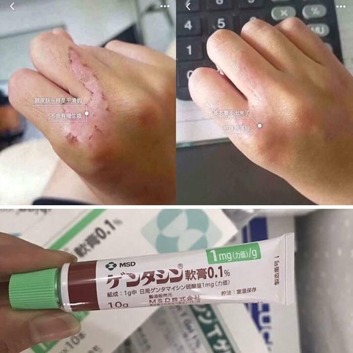 Kem Trị Sẹo Gentacin của Nhật 10g - Trị sẹo Lồi sẹo Lõm